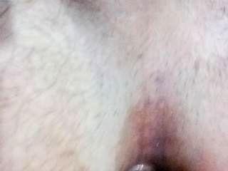 내 엉덩이를 막다